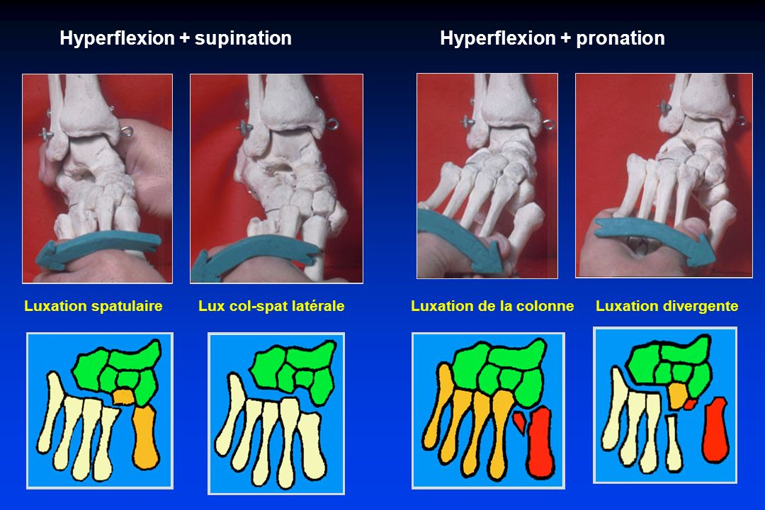 Hyperflexion + supination Hyperflexion + pronation