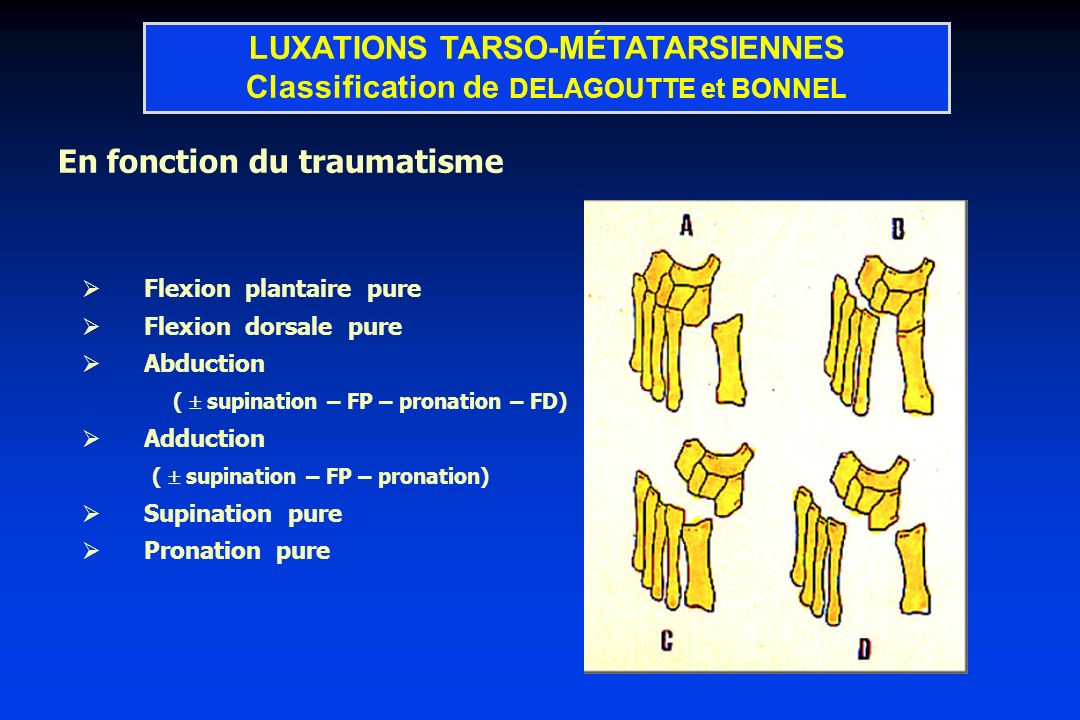 LUXATIONS TARSO-MÉTATARSIENNES Classification de DELAGOUTTE et BONNEL
