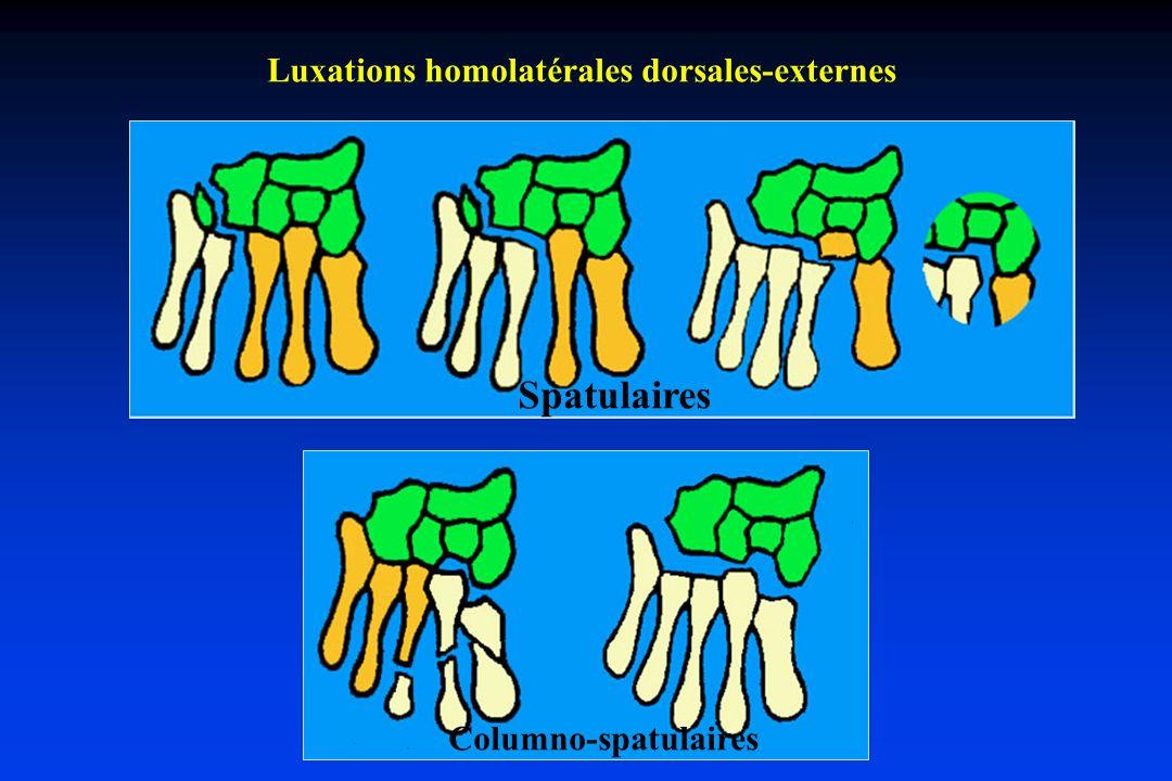 Luxations homolatérales dorsales-externes