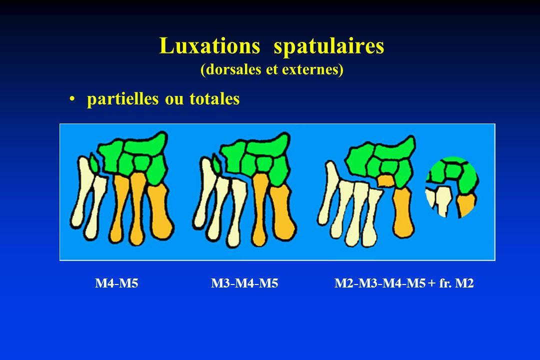 Luxations spatulaires (dorsales et externes)