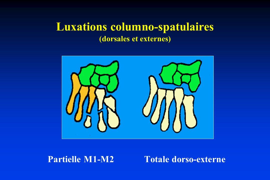 Luxations columno-spatulaires (dorsales et externes)