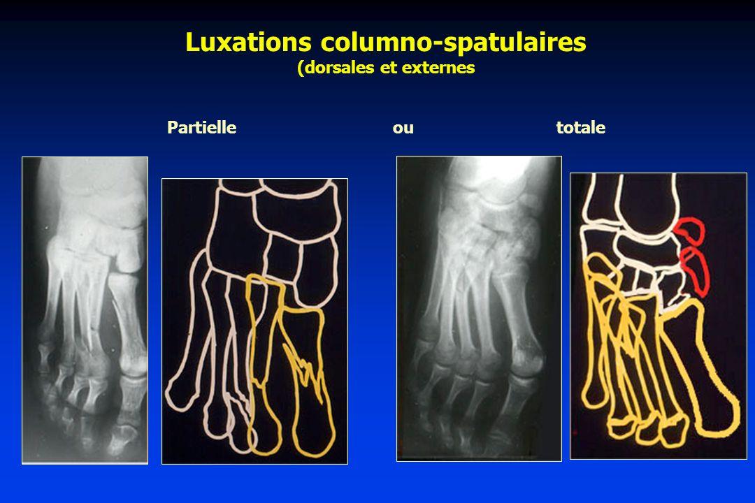 Luxations columno-spatulaires (dorsales et externes