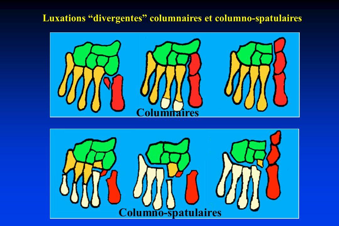 Luxations divergentes columnaires et columno-spatulaires