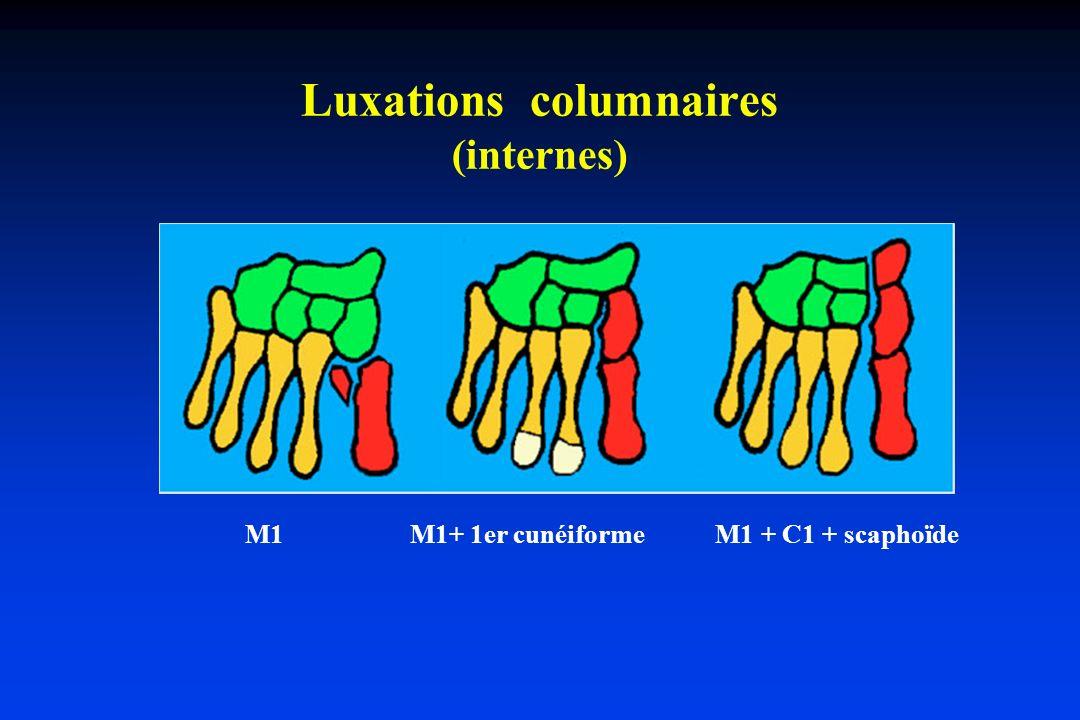 Luxations columnaires (internes)