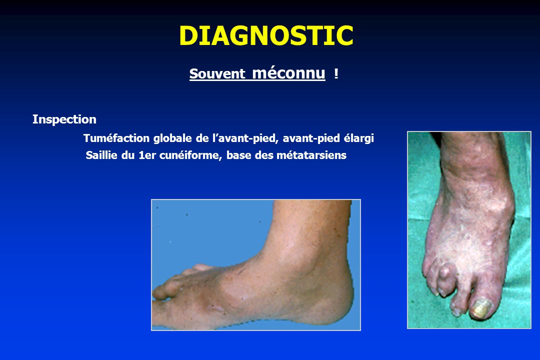 DIAGNOSTIC Souvent méconnu ! Inspection