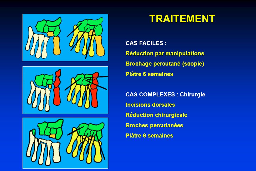 TRAITEMENT CAS FACILES : Réduction par manipulations