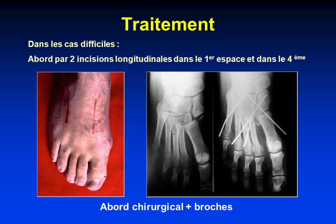 Abord chirurgical + broches