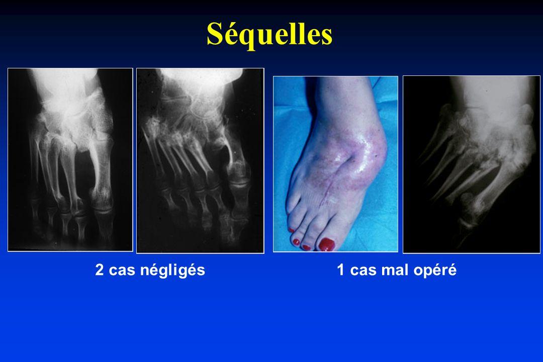 Séquelles 2 cas négligés 1 cas mal opéré