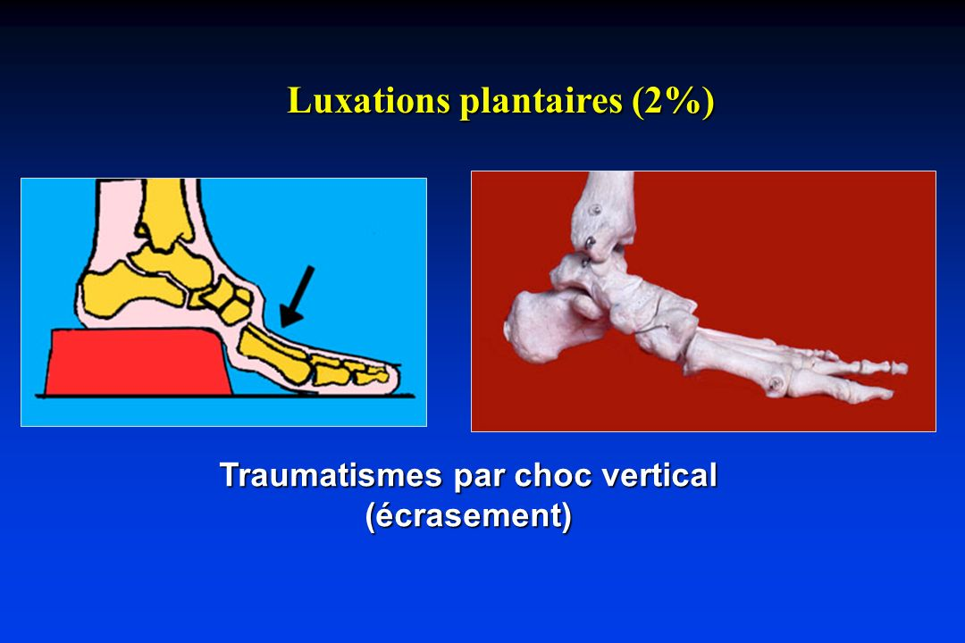 Luxations plantaires (2%) Traumatismes par choc vertical (écrasement)