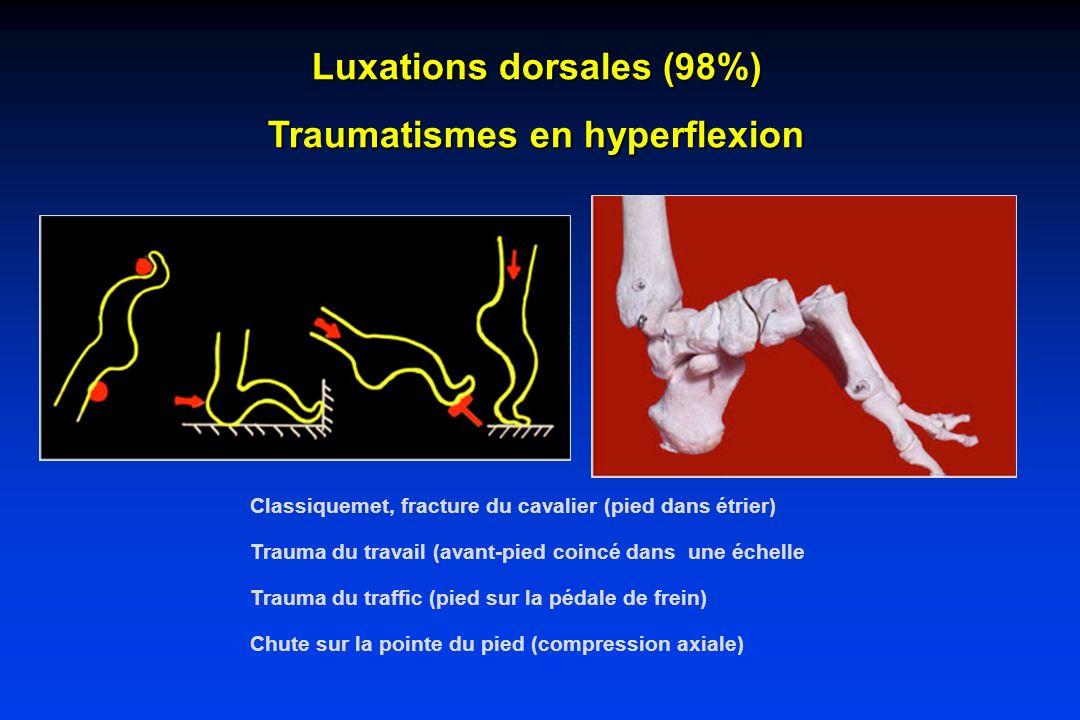 Luxations dorsales (98%) Traumatismes en hyperflexion