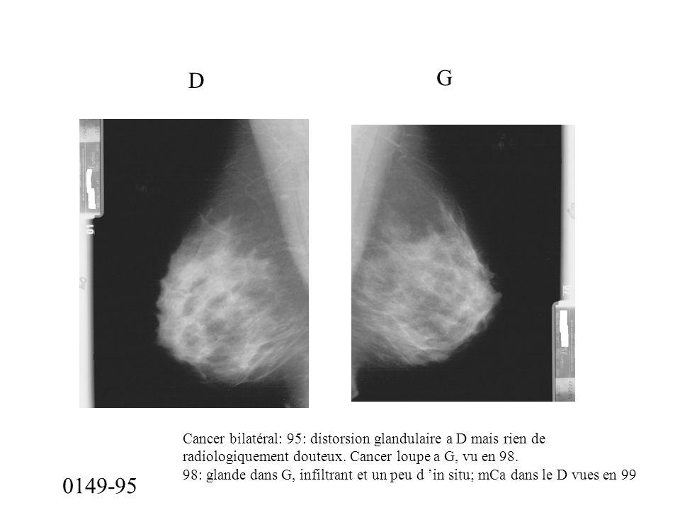 D G. Cancer bilatéral: 95: distorsion glandulaire a D mais rien de. radiologiquement douteux. Cancer loupe a G, vu en 98.