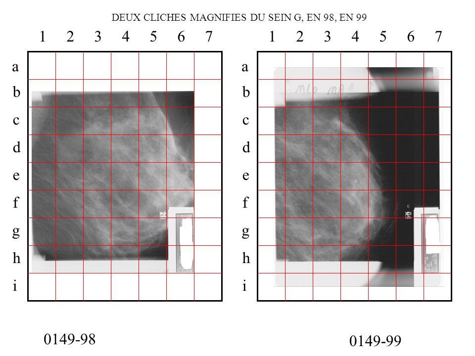 DEUX CLICHES MAGNIFIES DU SEIN G, EN 98, EN 99