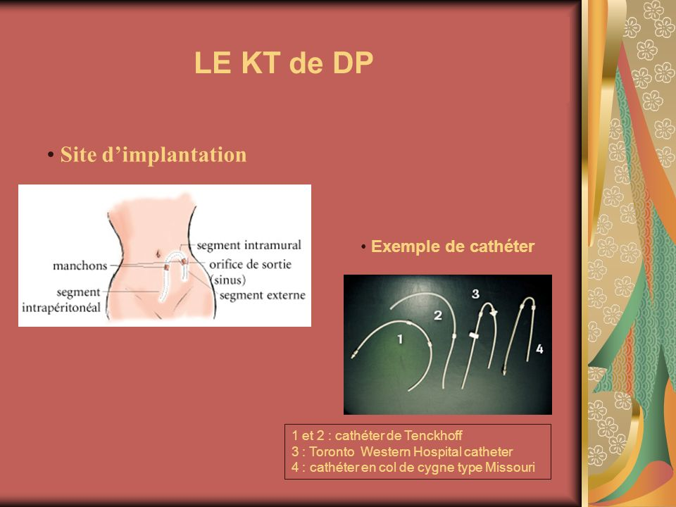 LE KT de DP Site d'implantation Exemple de cathéter 3