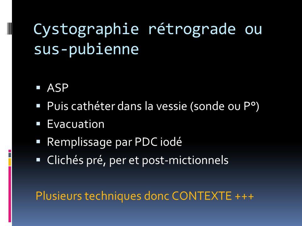 Cystographie rétrograde ou sus-pubienne