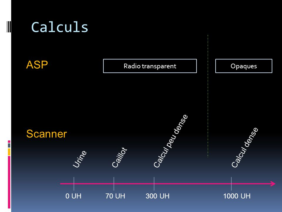 Calculs ASP Scanner Calcul peu dense Calcul dense Caillot Urine