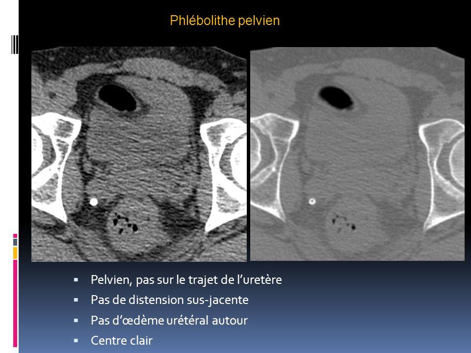 Phlébolithe pelvien Pelvien, pas sur le trajet de l'uretère. Pas de distension sus-jacente. Pas d'œdème urétéral autour.