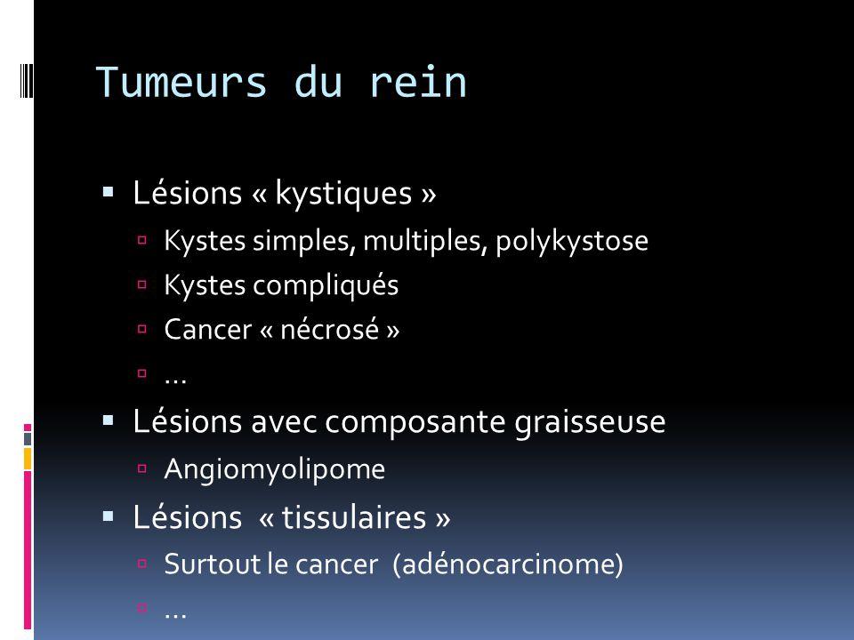 Tumeurs du rein Lésions « kystiques »