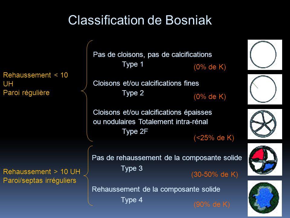 Classification de Bosniak