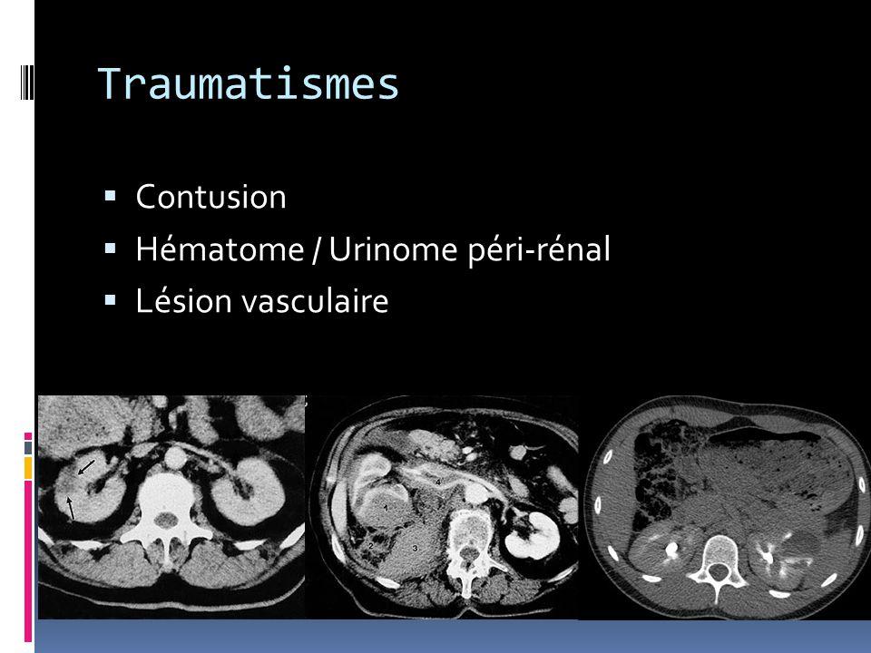 Traumatismes Contusion Hématome / Urinome péri-rénal Lésion vasculaire