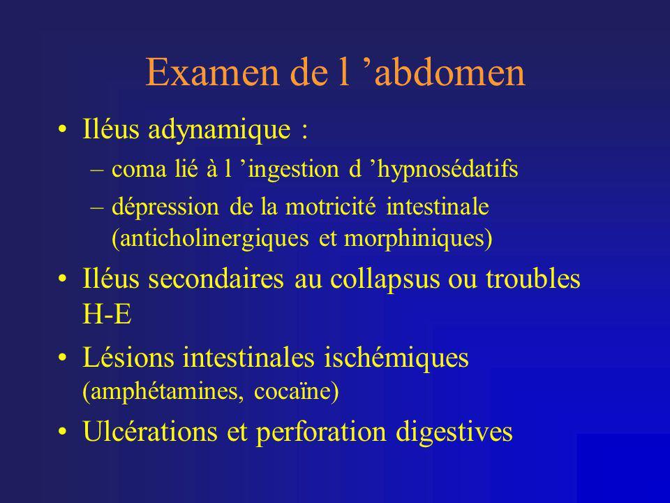 Examen de l 'abdomen Iléus adynamique :