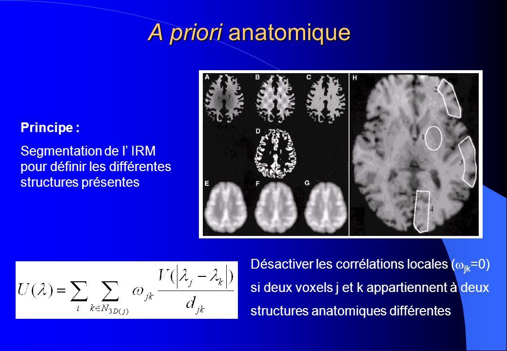 A priori anatomique Principe :