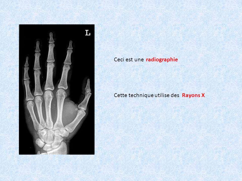 Ceci est une radiographie Cette technique utilise des Rayons X