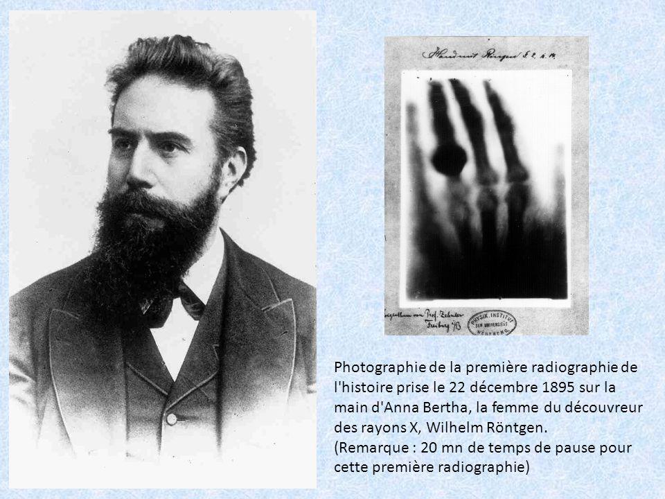 Photographie de la première radiographie de l histoire prise le 22 décembre 1895 sur la main d Anna Bertha, la femme du découvreur des rayons X, Wilhelm Röntgen.
