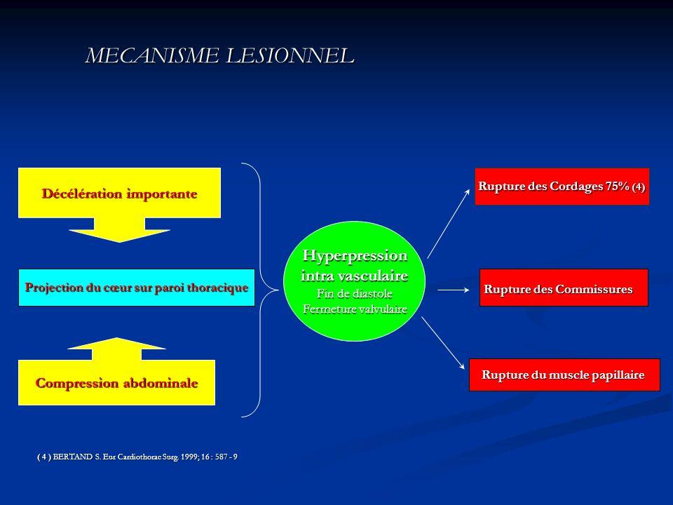 MECANISME LESIONNEL Hyperpression intra vasculaire