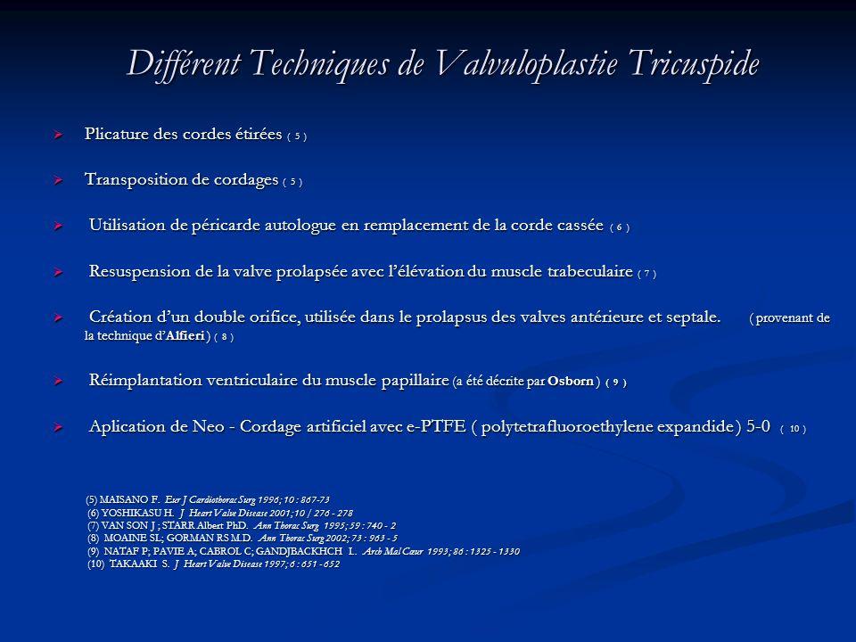 Différent Techniques de Valvuloplastie Tricuspide
