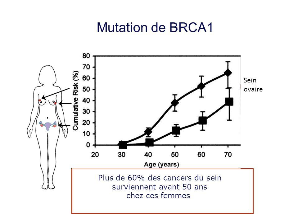 Mutation de BRCA1 Sein ovaire Cancer du sein :