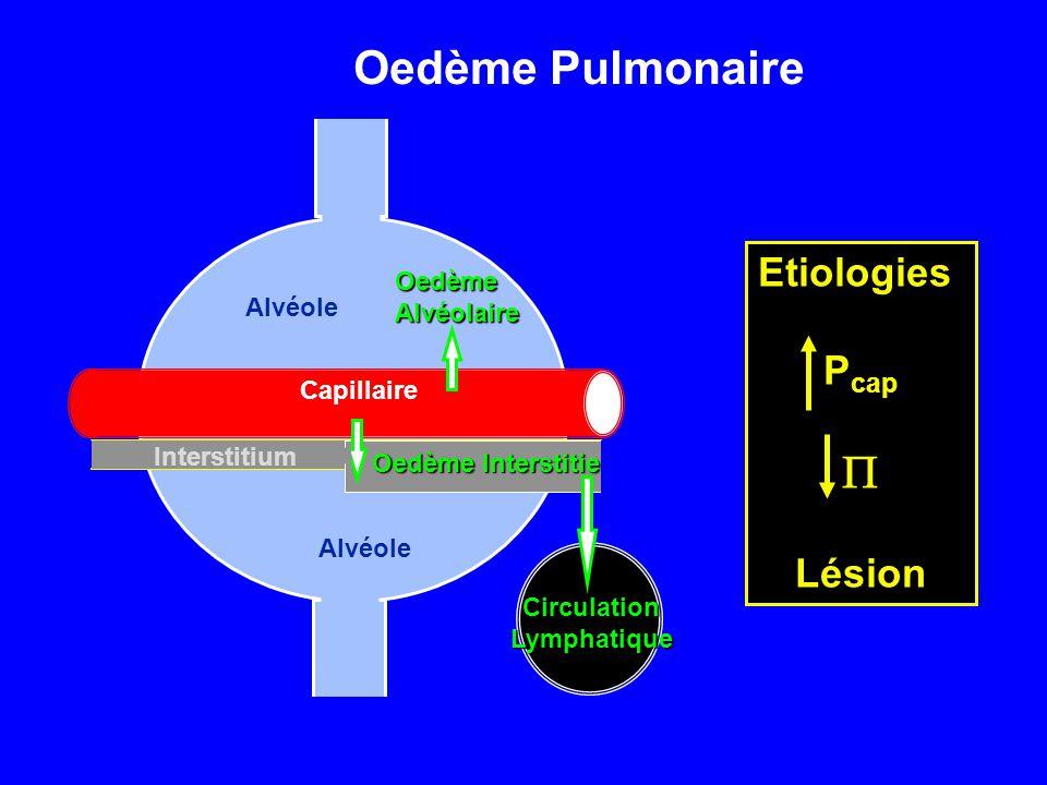 Oedème Pulmonaire P Etiologies Pcap Lésion Oedème Alvéolaire Alvéole