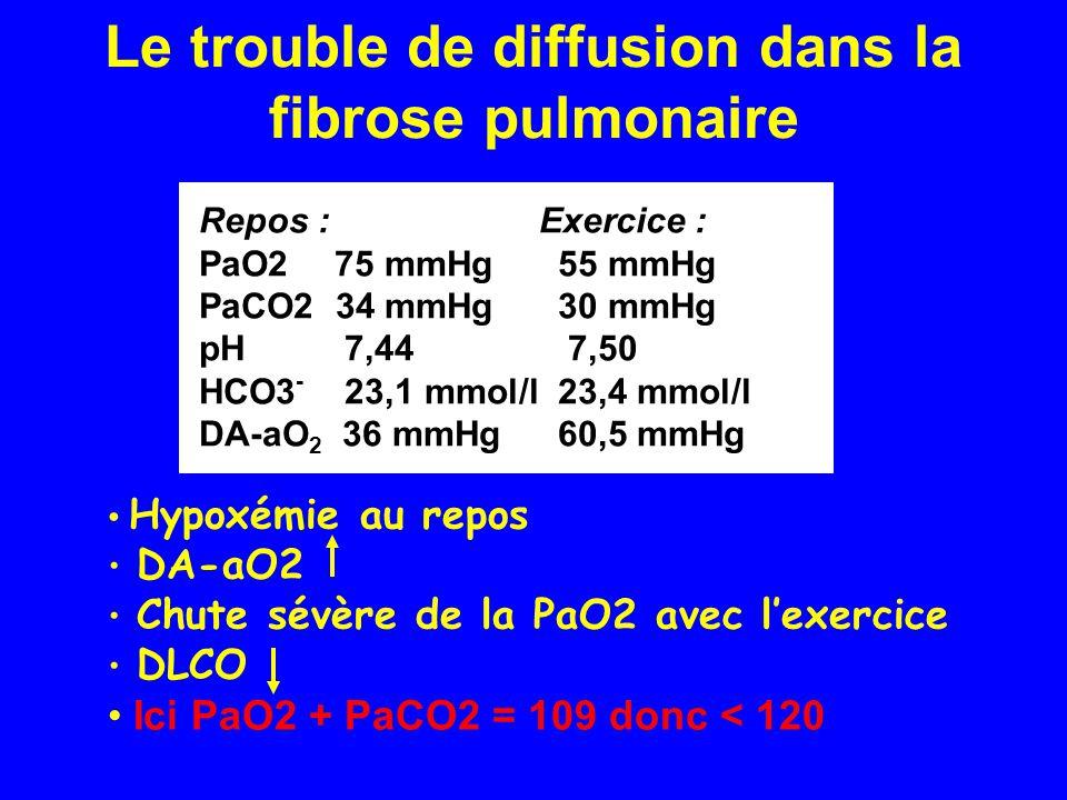 Le trouble de diffusion dans la fibrose pulmonaire