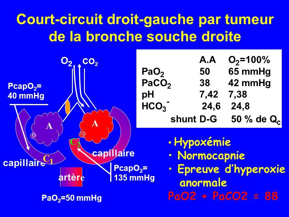 Court-circuit droit-gauche par tumeur de la bronche souche droite