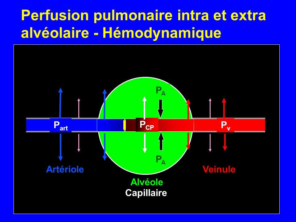 Perfusion pulmonaire intra et extra alvéolaire - Hémodynamique