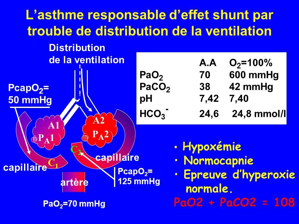 L'asthme responsable d'effet shunt par trouble de distribution de la ventilation