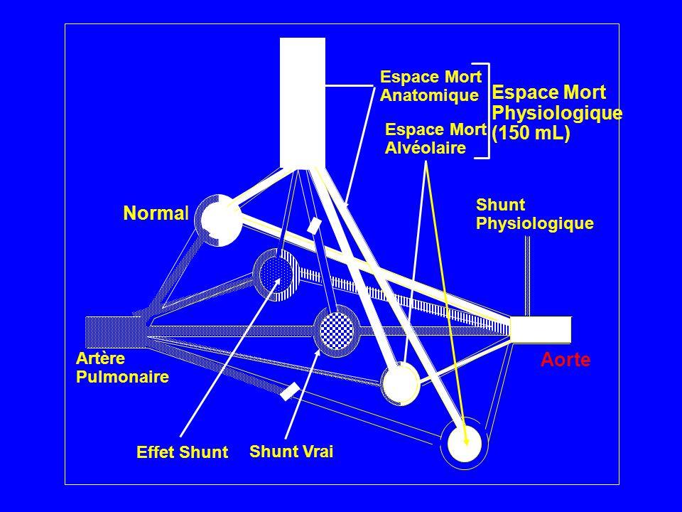 (150 mL) Normal Aorte Anatomique Espace Mort Alvéolaire Shunt