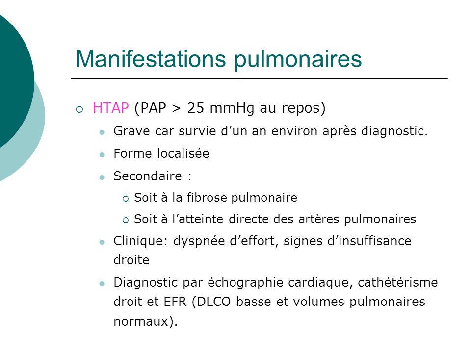 Manifestations pulmonaires