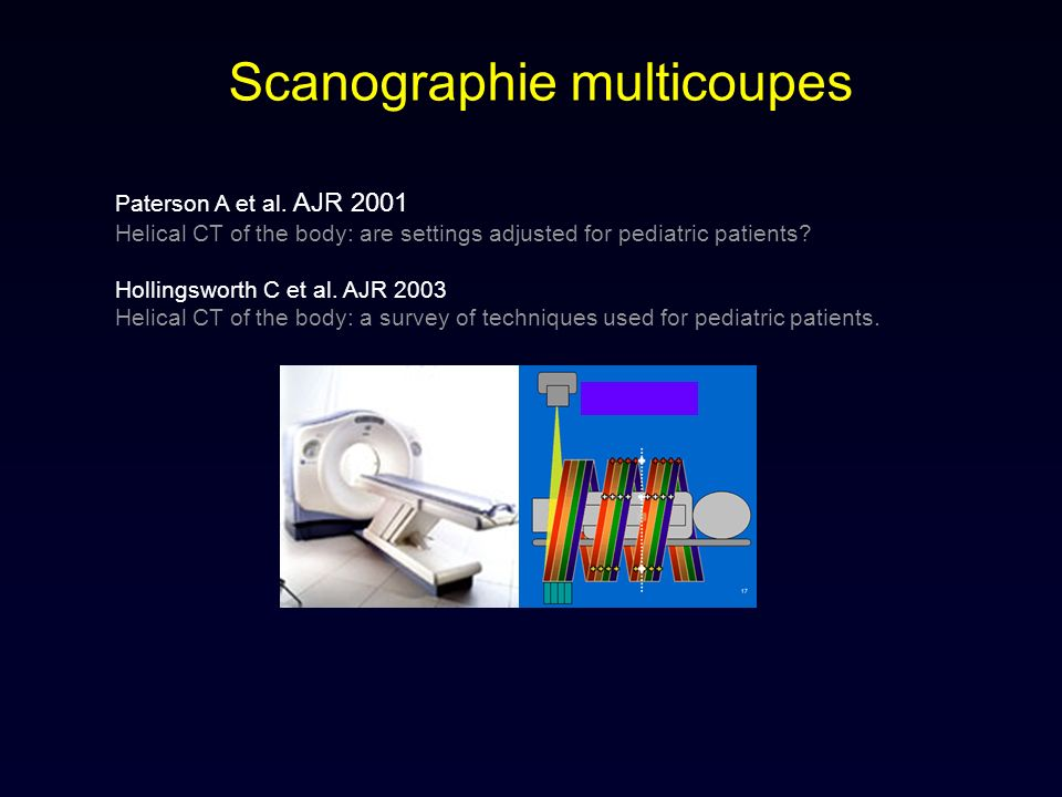 Scanographie multicoupes