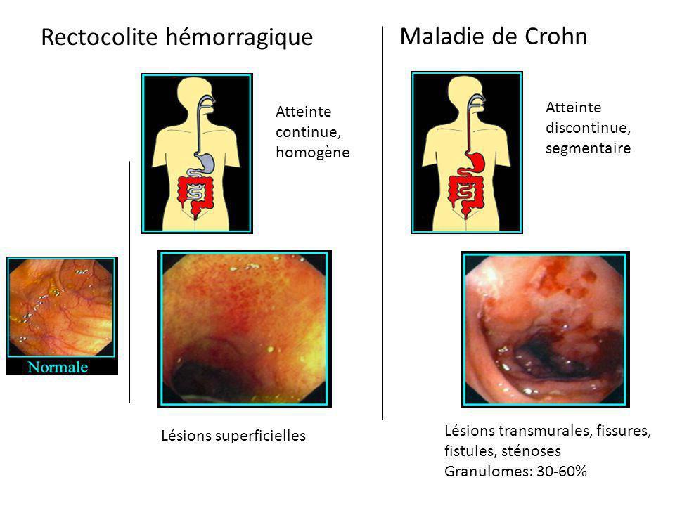 Rectocolite hémorragique Maladie de Crohn