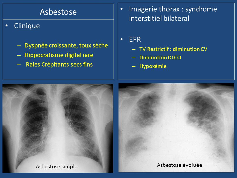Asbestose Imagerie thorax : syndrome interstitiel bilateral EFR