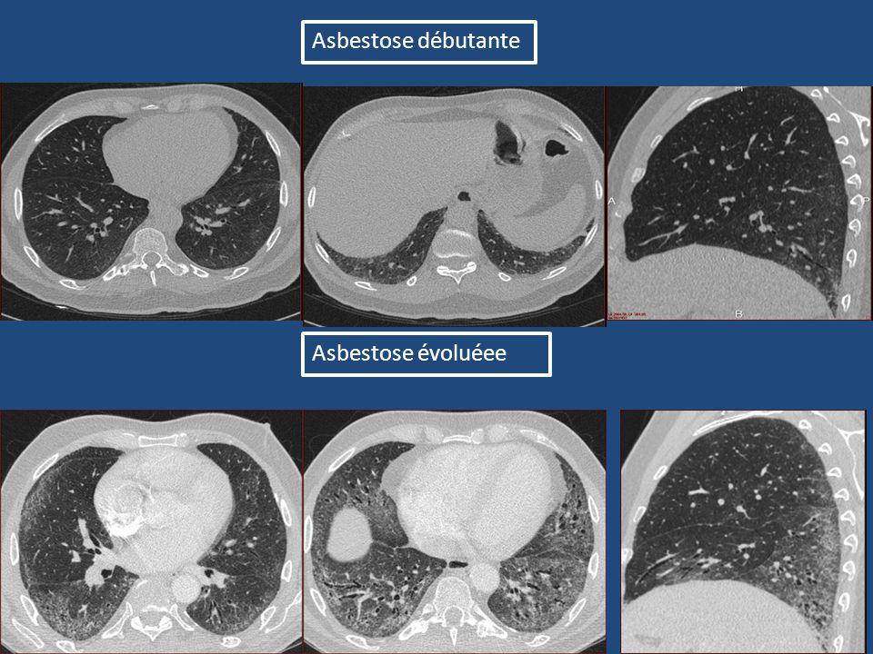 Asbestose débutante Asbestose évoluéee