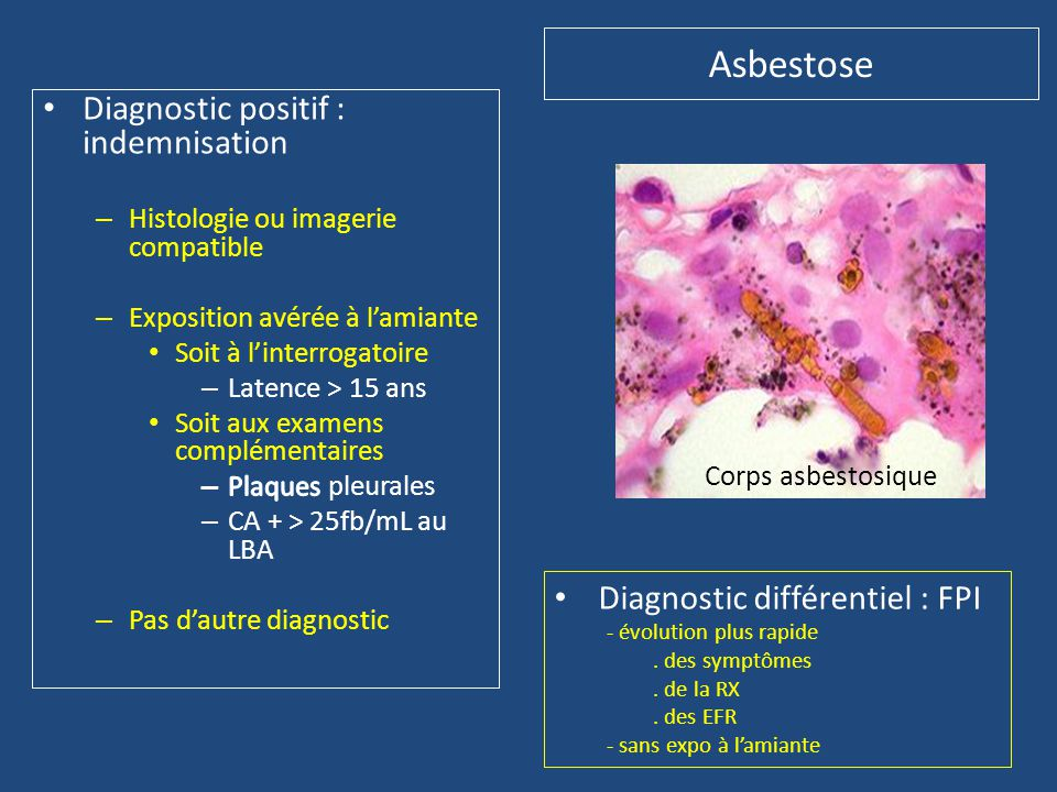 Asbestose Diagnostic positif : indemnisation