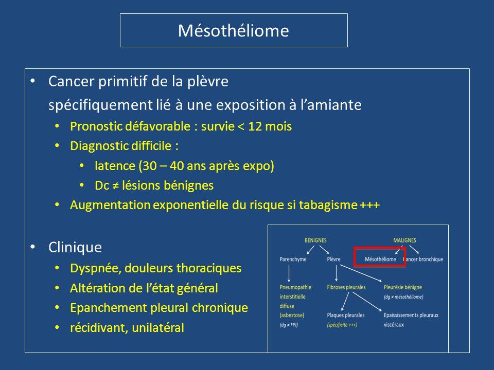 Mésothéliome Cancer primitif de la plèvre