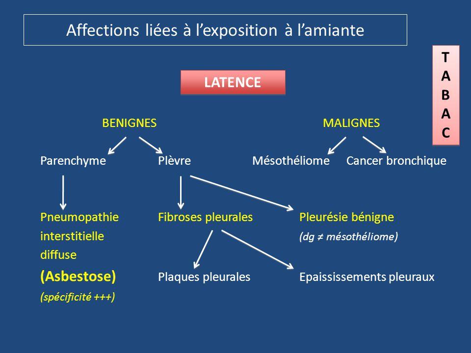 Affections liées à l'exposition à l'amiante