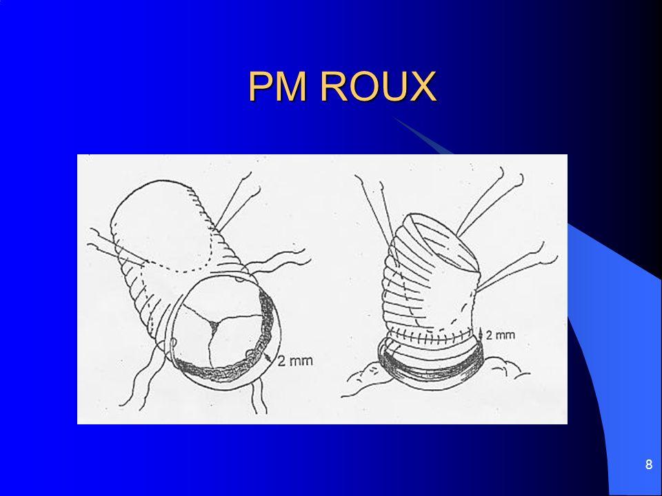 PM ROUX