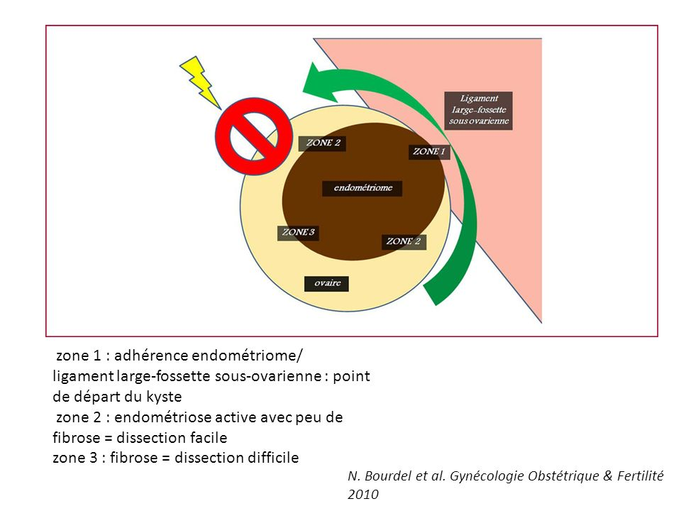 zone 1 : adhérence endométriome/