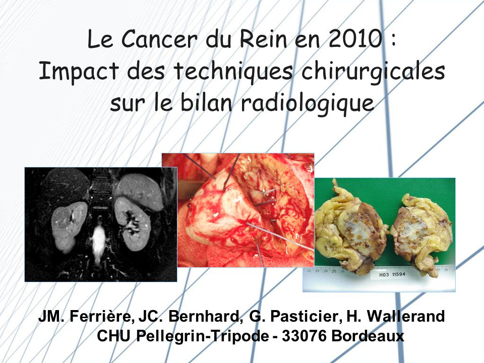 Le Cancer du Rein en 2010 : Impact des techniques chirurgicales sur le bilan radiologique