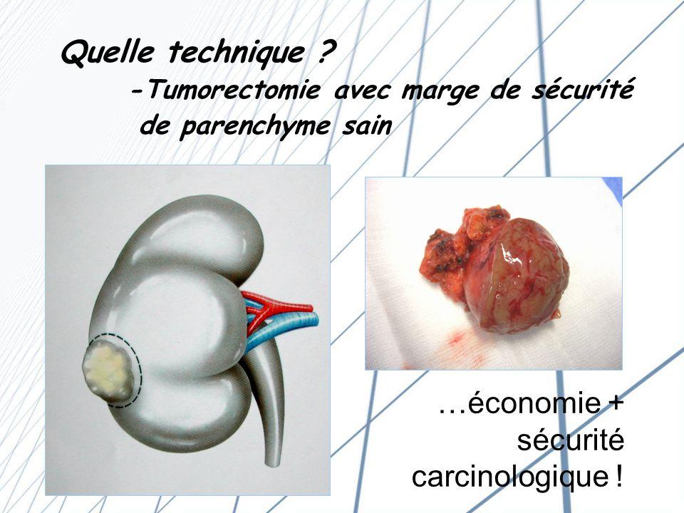 Quelle technique. -Tumorectomie avec marge de sécurité