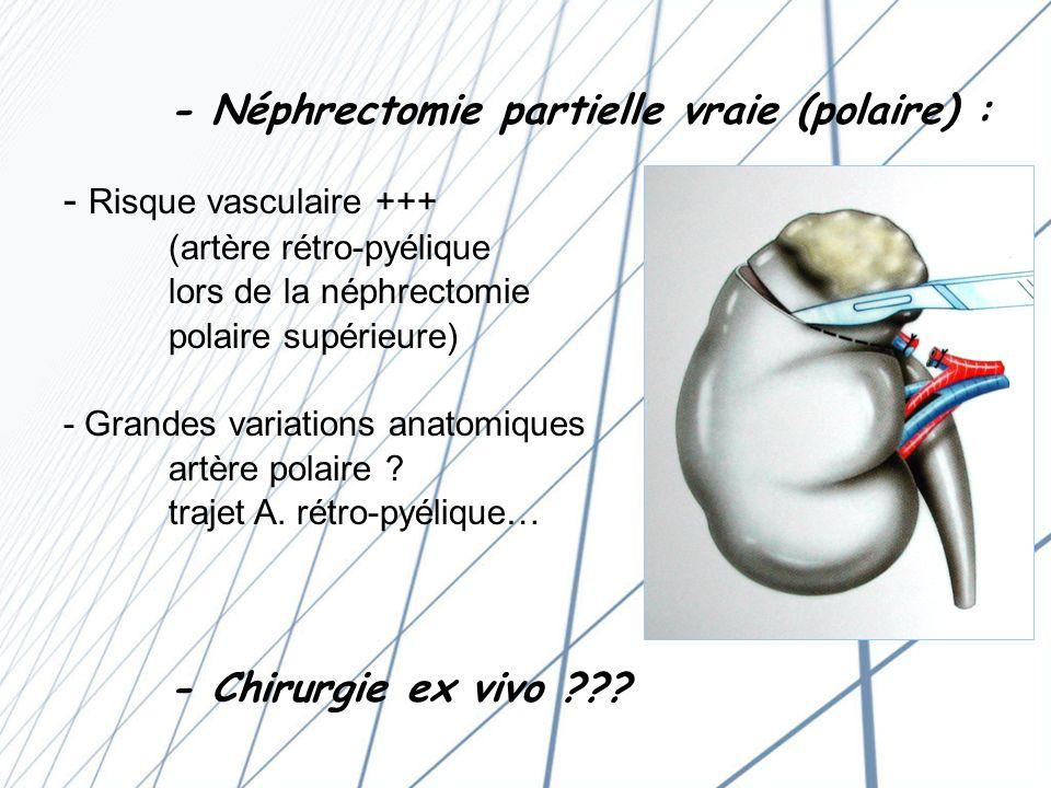 - Néphrectomie partielle vraie (polaire) :