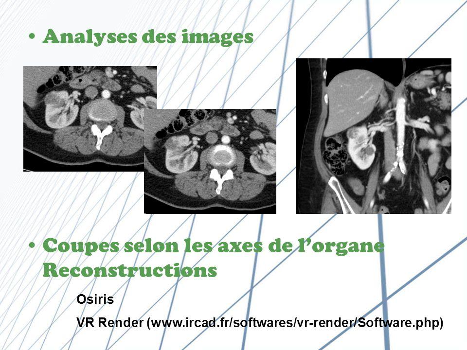 Coupes selon les axes de l'organe Reconstructions